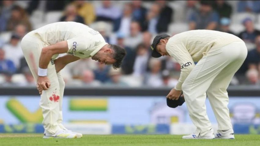 Ind Vs Eng Oval Test James Anderson Bowling With Bleeding Knee